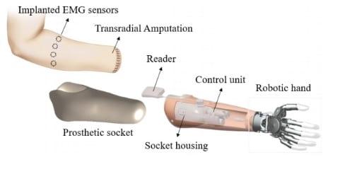 RFID protesi - La ricerca italiana