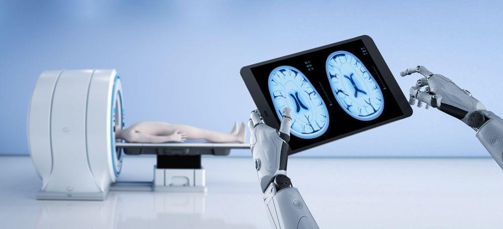 intelligenza artificiale e morbo di Alzheimer