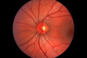 intelligenza artificiale e microaneurismi retinici