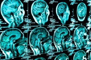 intelligenza artificiale e neuroimaging
