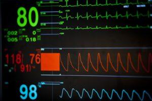 smart speaker e misurazione battito cardiaco