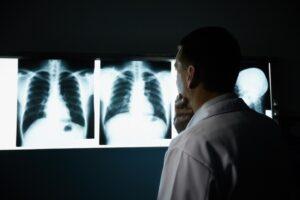 intelligenza artificiale e prevenzione cancro
